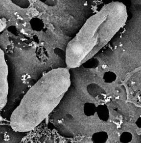 ¿Qué hay en nuestras células? (II)